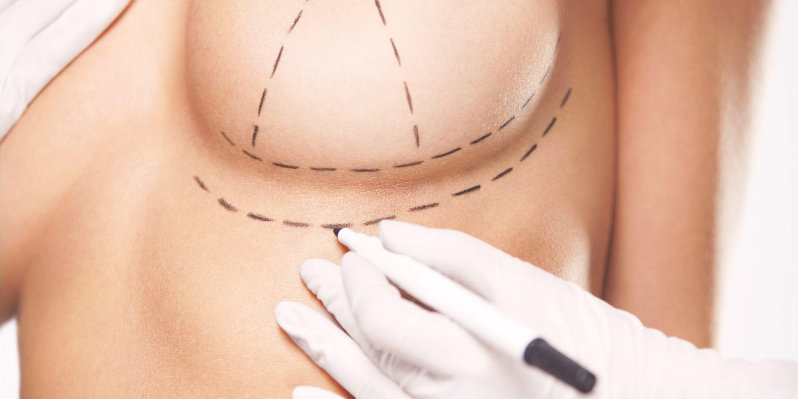 Подготовка к маммопластике - с чего начинать?